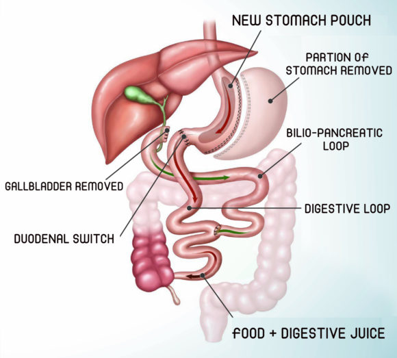 Laparoscopic Biliopancreatic Diversion (BPD)