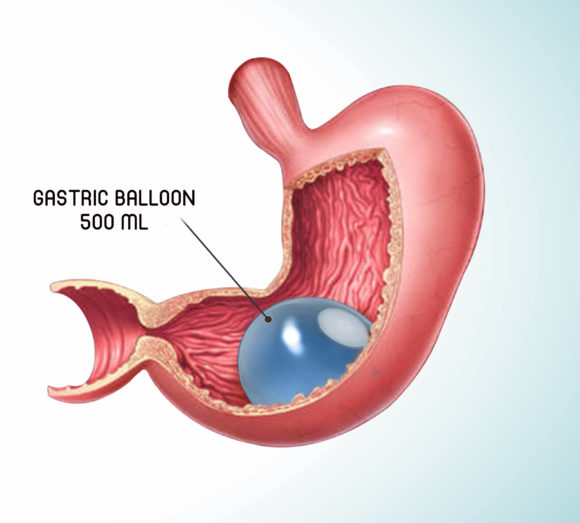 Gastric Balloon Insertion and Retrieval
