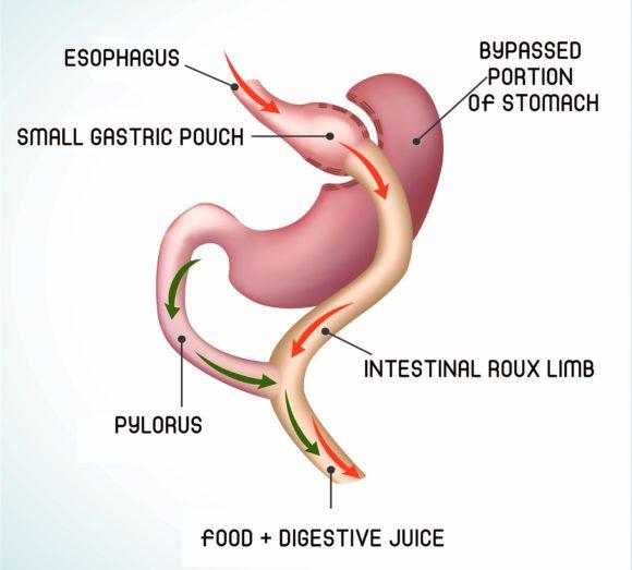 Laparoscopic Roux-en Y Gastric Bypass (RYGB)