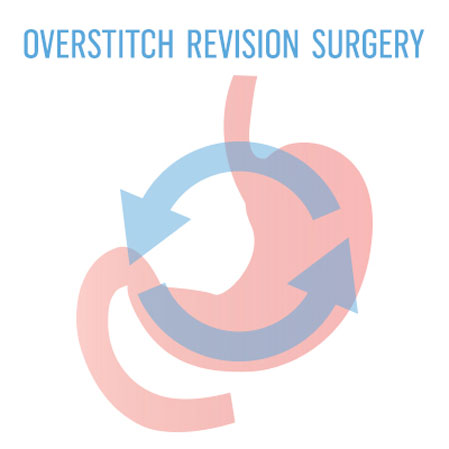 OverStitch Revision of RYGB