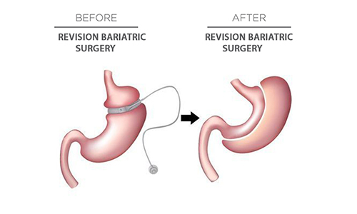 Revisional Bariatric Surgery